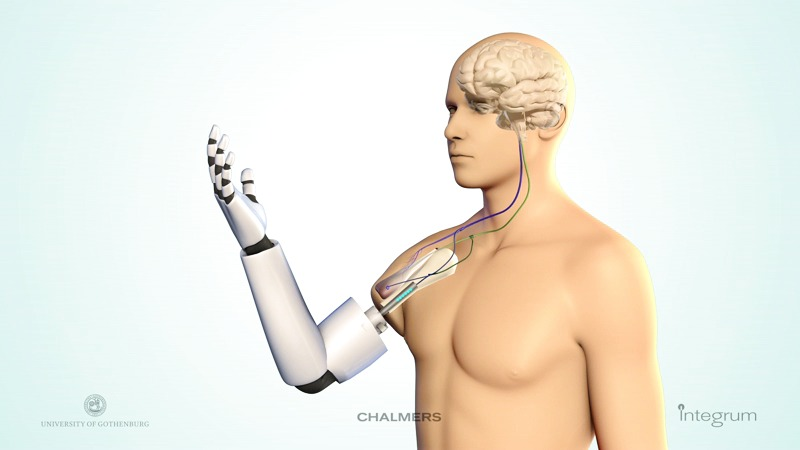 Технология ITAP: протезы, которые вживляют в кость