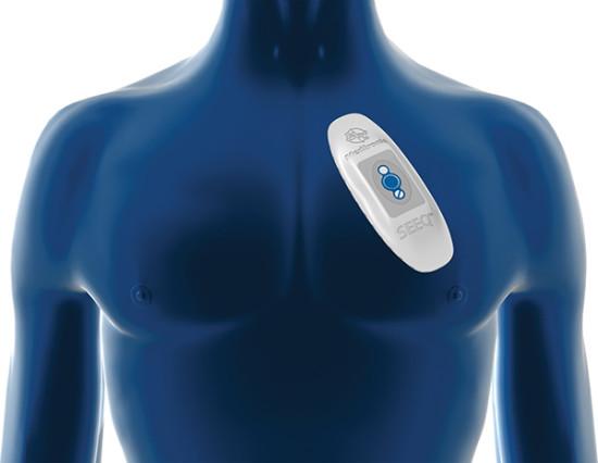 Беспроводная система мониторинга помогает диагностировать сердечную аритмию